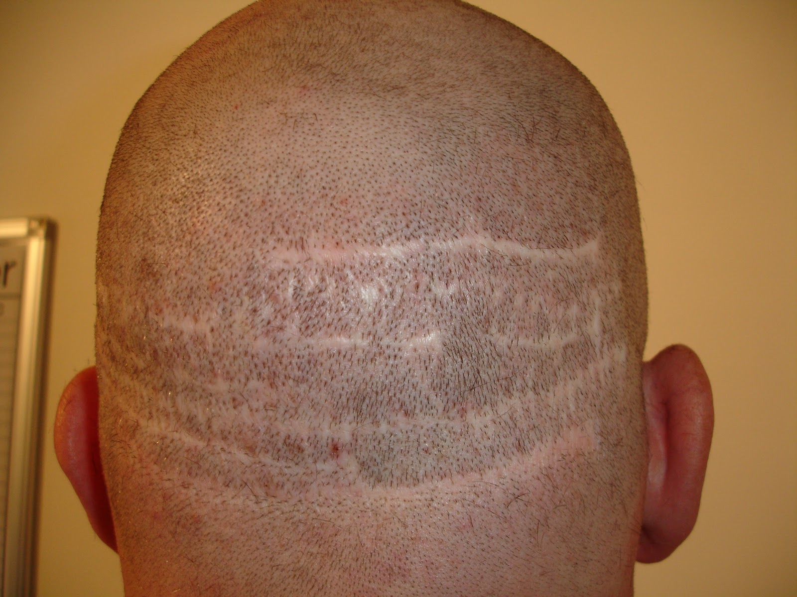 Shall Hair transplant scar shaved agree, the