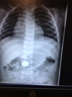 x-ray of penny in belly