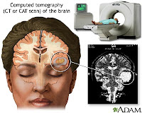 Brain Ct Scan1
