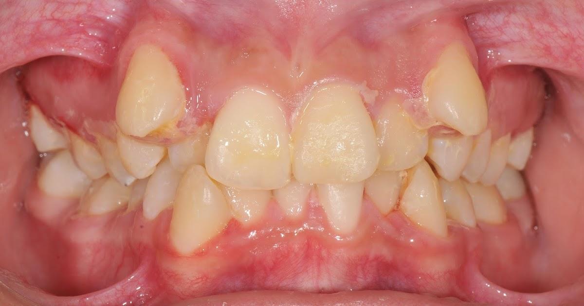 Ortodoncia preventiva extracciones seriadas for W de porter ortodoncia