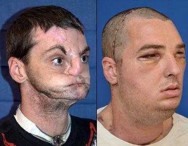 O maior Transplante de rosto realizado com sucesso
