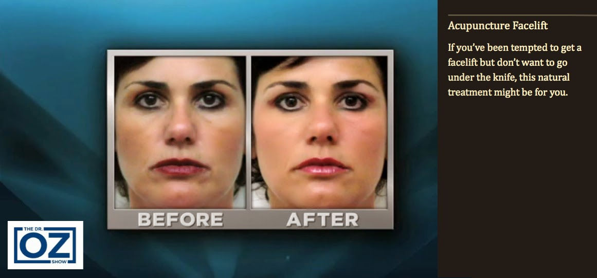 Remyd acupuncture facial rejuvenation acupuncture facelift the dr oz show solutioingenieria Image collections