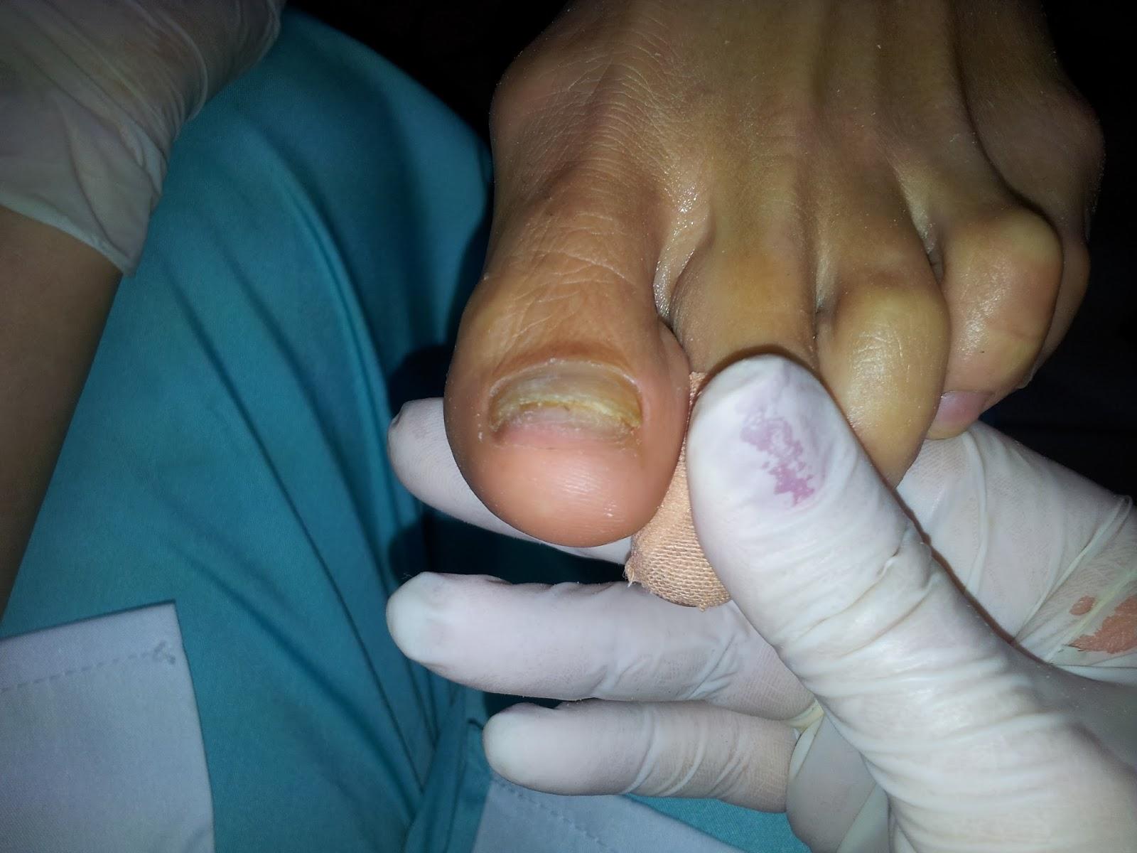 Член между пальцев ног фото, Дрочит хуй ногами увлекательное порно фото порева 3 фотография