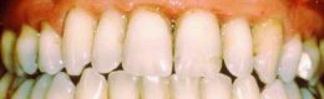 Symptoms and causes swelling of the gums