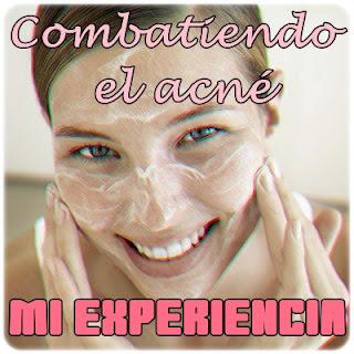 http://emmaaist.blogspot.com.es/2012/12/combatiendo-el-acne-tratamientos.html