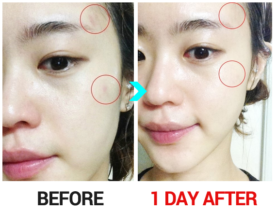 Fast way how to get rid of acne and acne scars sir healthy how to get rid of acne and the scars a lot of problems that arise in our face one of them is facial acne acne makes us not confident when we ccuart Choice Image