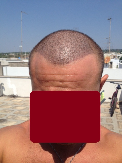 What Is Micro Hair Transplant 29