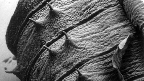 Earthworm Head Under Microscope earthworm head under