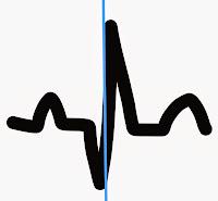 Normal Heart Beat ECG