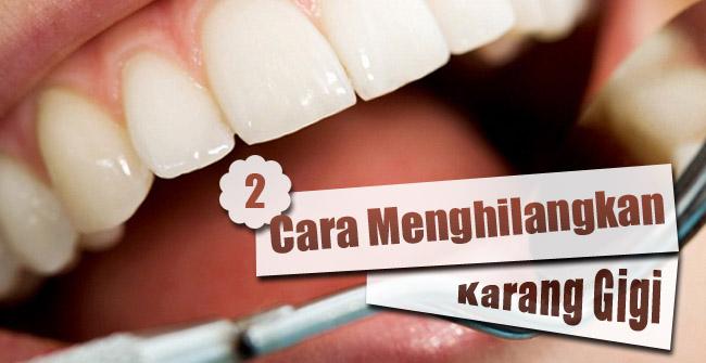 Yuherni 6 Cara Menghilangkan Karang Gigi Dan Mencegahnya