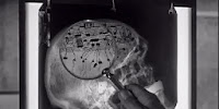 Creature with the Atom Brain microchip brain x-ray