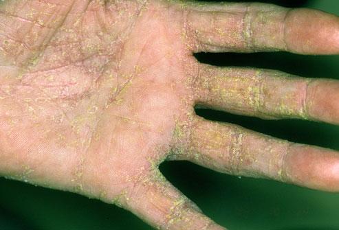 Scabies - British Skin Foundation
