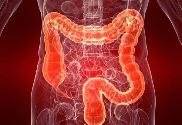 اعراض سرطان القولون الرئيسية