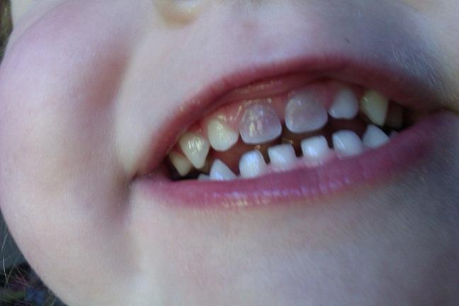 Почему у ребенка не растут зубы после выпадения 5