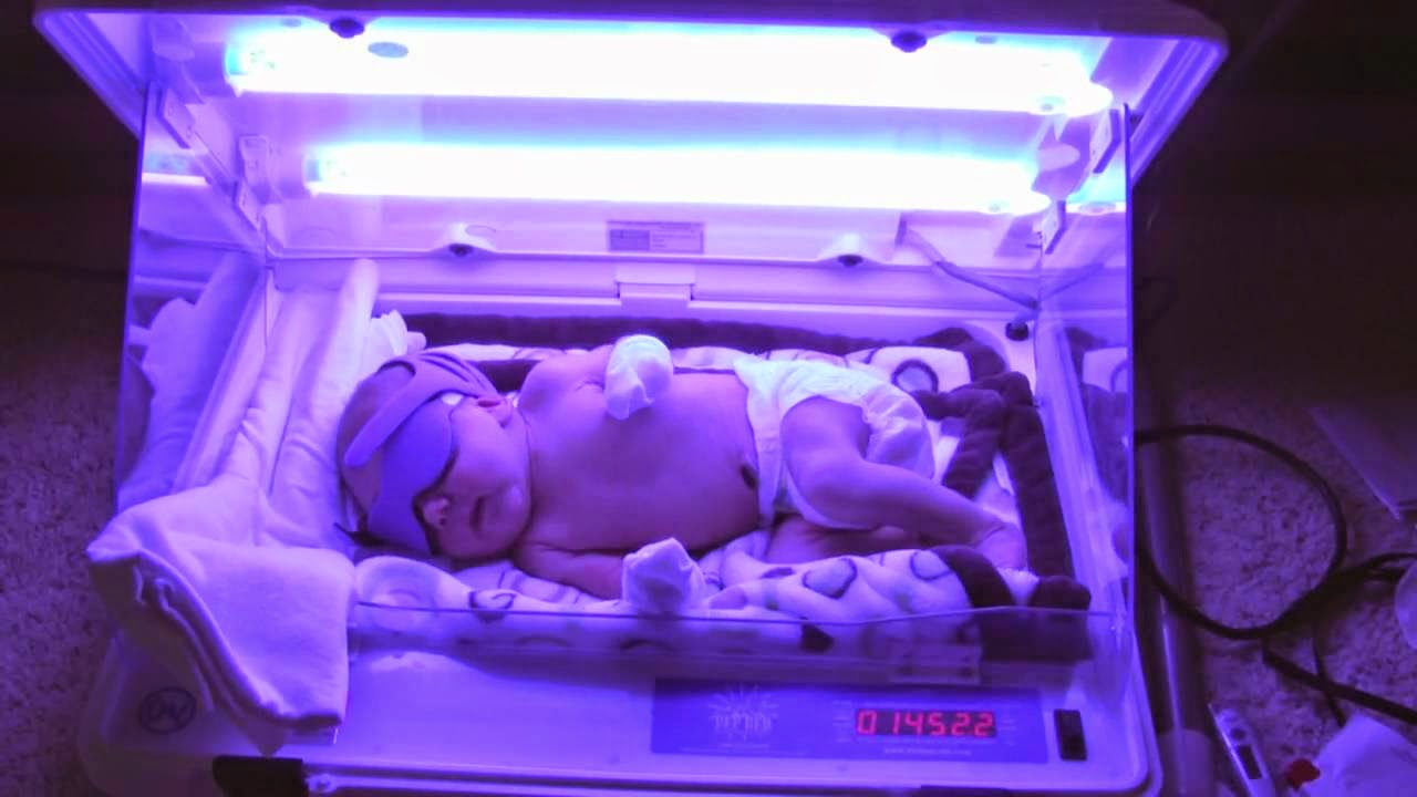 Sakit Kuning Bayi Baru Lahir
