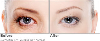 Can't Fix Dark Circles and Puffy Eyes,