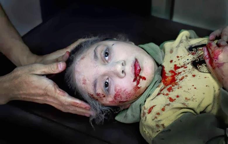 niña Siria herida