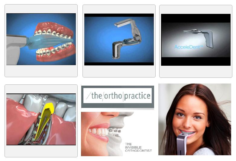 AcceleDent Device - The Ortho Practice