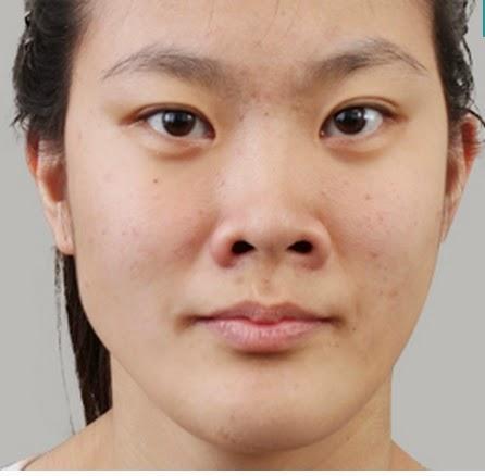 Sebelum operasi plastik hidung korea di wonjin