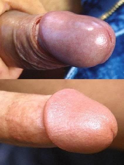 masturbacion pene circuncidado