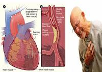 Penyebab Penyakit Jantung Koroner Dan Cara Mengurangi Resikonya