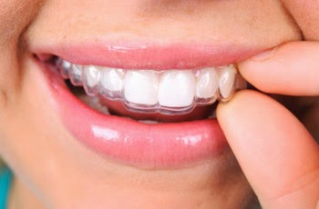 Invisalign Dentistry
