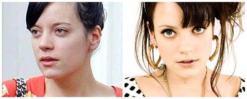 Lily allen antes y despues