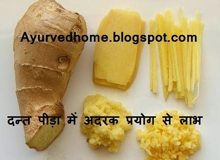 ginger use and benefits for toothache in hindi ,दाँतों के दर्द का अदरक से उपचार