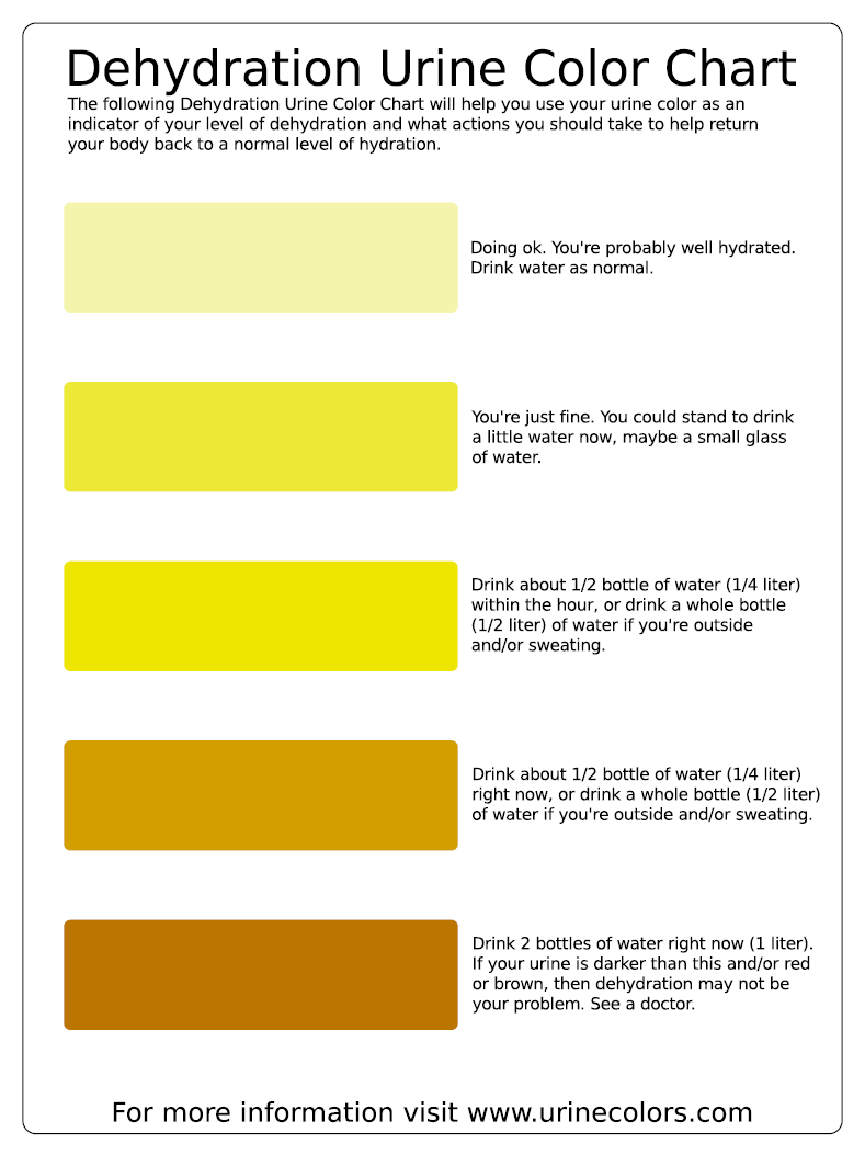 pee color Human urine has been a useful tool of diagnosis since the earliest days of  medicine the color, density and smell of urine can reveal much.