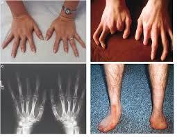 penyakit thalasemia penyebab cacat tubuh