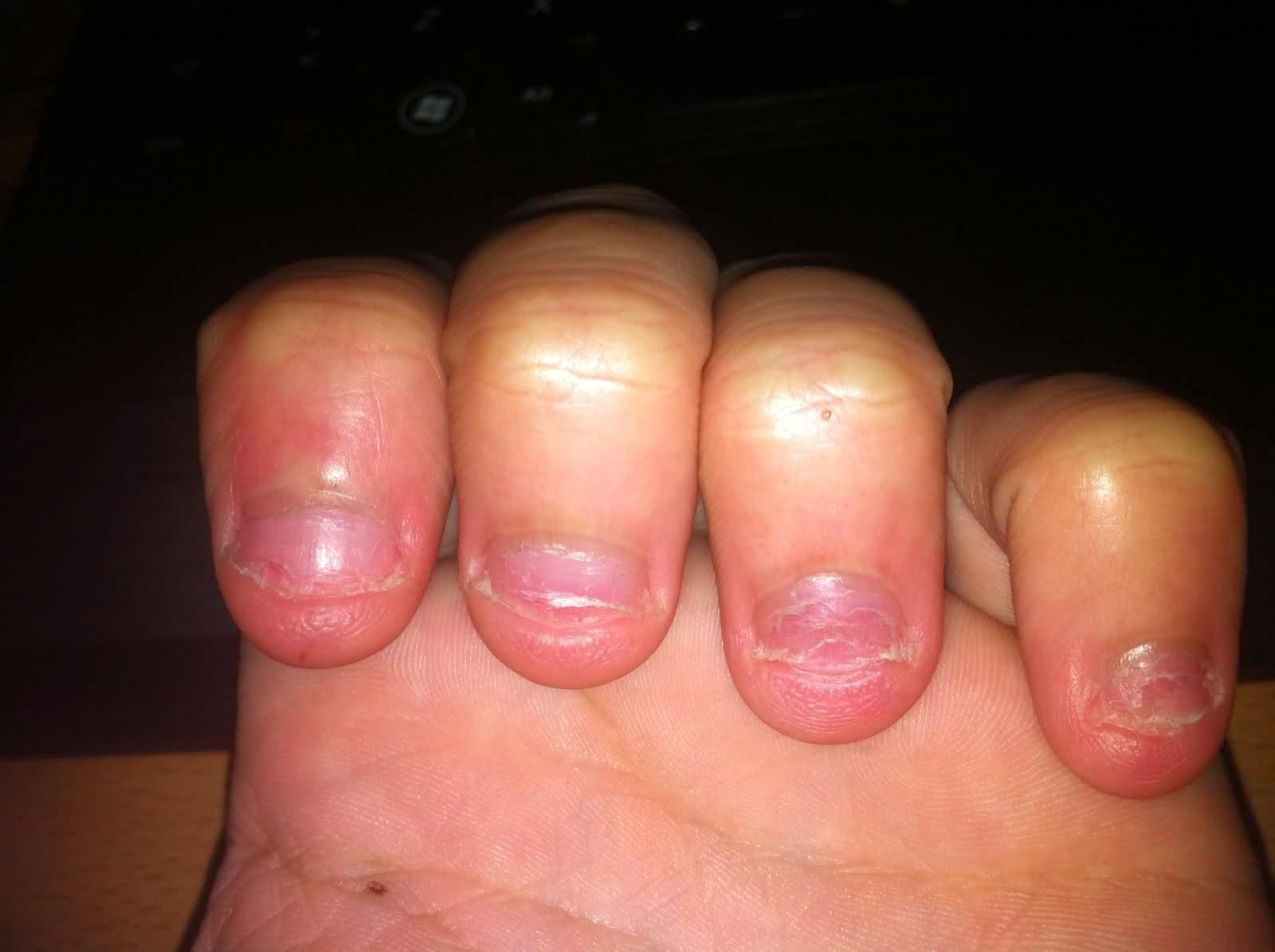El hongo de las uñas sobre todos los dedos