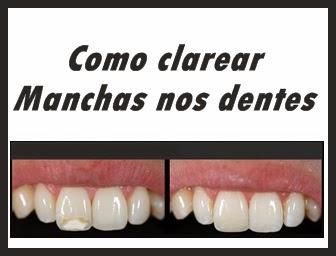 Como Tirar Manchas Dos Dentes