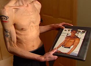 Manorexia - Anorexia Among Men