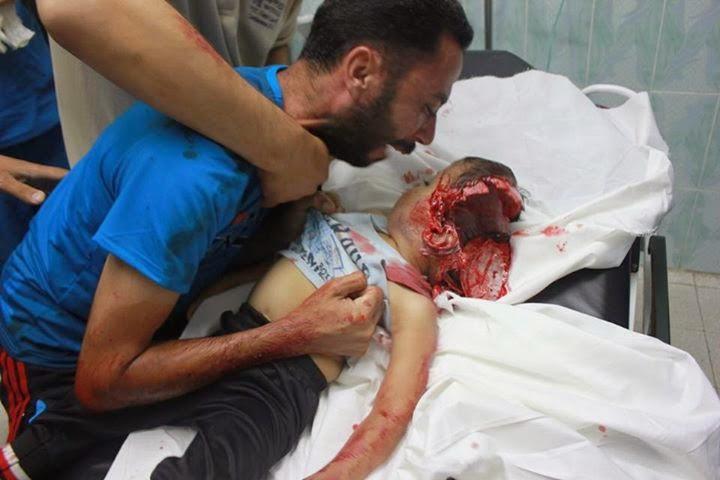 anak-anak kami dibombardir oleh israel
