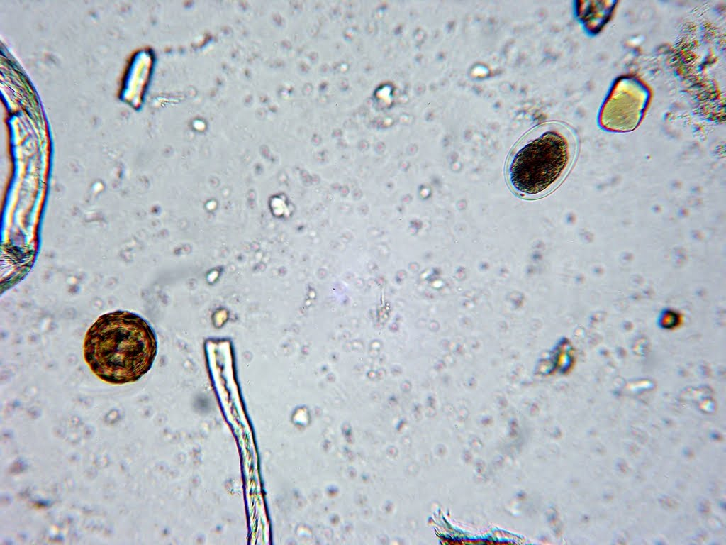 Hookworm in human stool - photo#9
