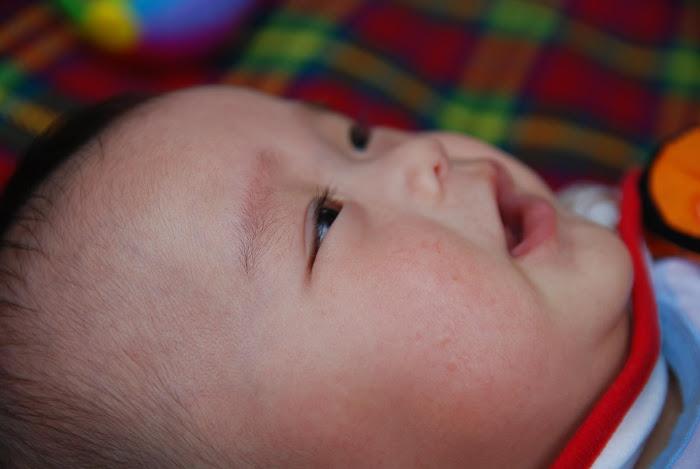 ruam panas pada bayi
