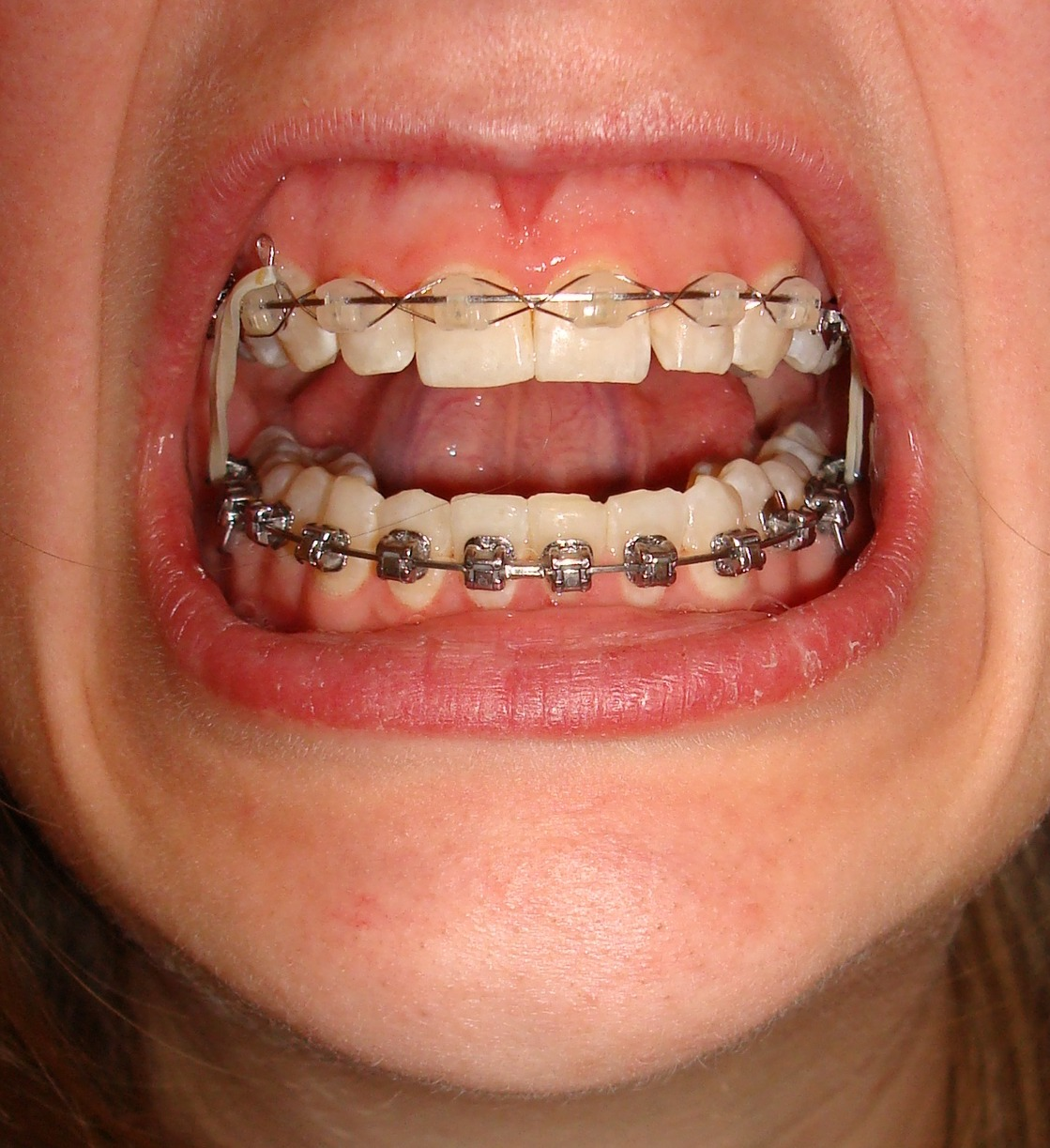Brown Spots on Baby Teeth http://mj-tekstatelier.nl/brown-spots-on-teeth-after-braces&page=5