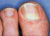 Como sanar el dedo en que ha arraigado la uña