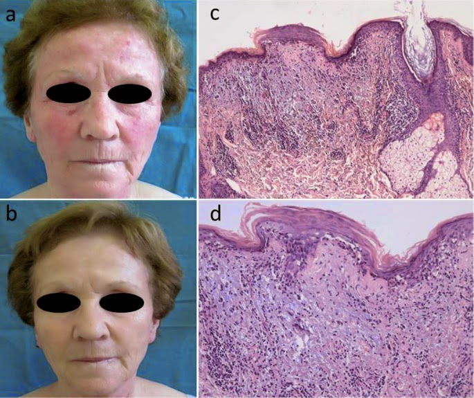 Lupus Facial Flushing
