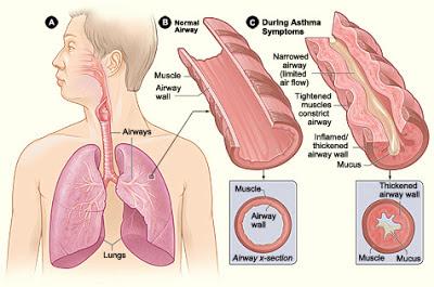 Asthma-In-Hindi