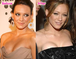 Fabulous Celebrity Plastic Surgery Before And After ...