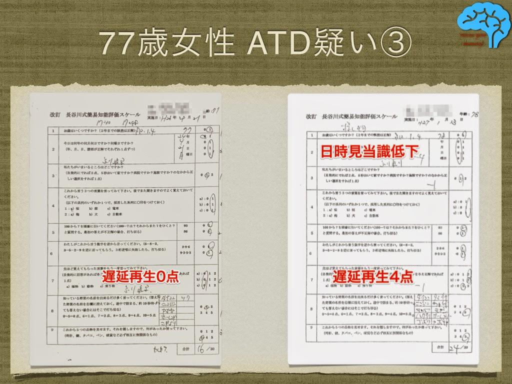 9ヶ月間で長谷川式テストが8点アップ