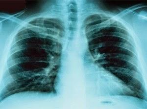 Cause del tumore al polmone ricerca europea