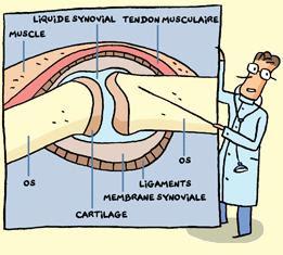 symptômes polyarthrite rhumatoïde