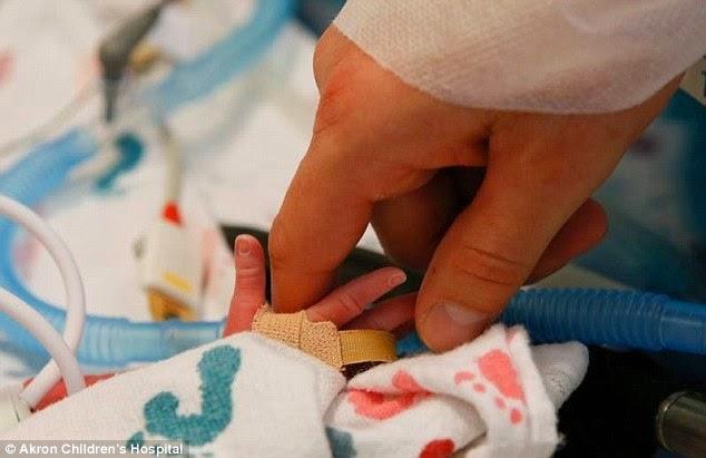 Gêmeas nascem de mãos dadas