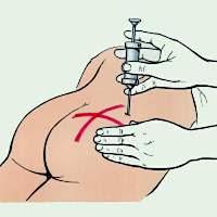 Как ставить укол диклофенака