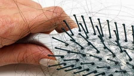 7 Cara Ampuh Mengatasi Rambut Rontok