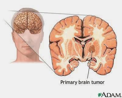 Cara Pengobatan Penyakit Tumor Otak