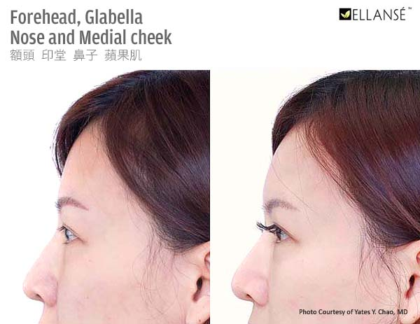 Ellanse Polycaprolactone for forehead recontouring