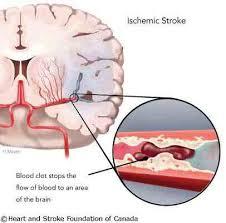 Cara Mengatasi Penyumbatan Pembuluh Darah Di Otak